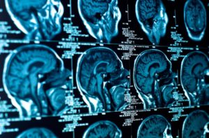 The Various Types Of Brain Injuries, Part 2